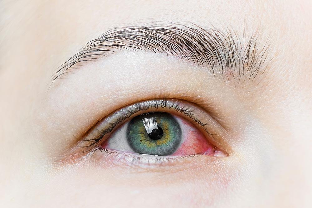 síndrome del ojo seco | Marta Montoya