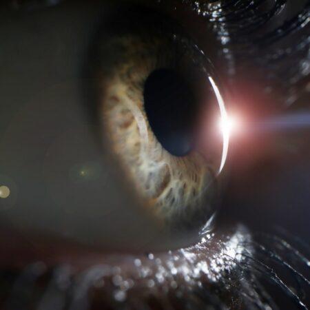 Cataratas en los ojos | Marta Montoya Óptica