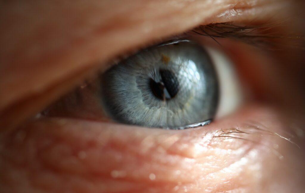 Enfermedad cataratas | Tienda de gafas de vista